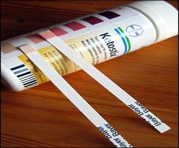 اندازه گیری کتون و قند در ادرار