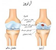 بیماری های استخوان