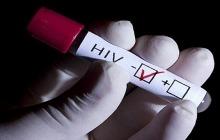 تست HIV