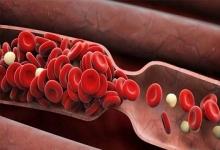 تاثیر داروهای قوی حل کنندهی لختههای خون بعد از گرفتگی عروق پا