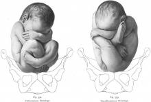 وضعیت بارداری دوم
