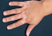 درمان ترکیبی موفقیت آمیز ویتیلیگو