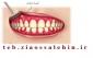 روش درمان آبسه دندان و روش های پیشگیری آن