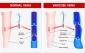 بررسی کامل علل، درمان و عوامل ایجاد کننده واریس در بانوان